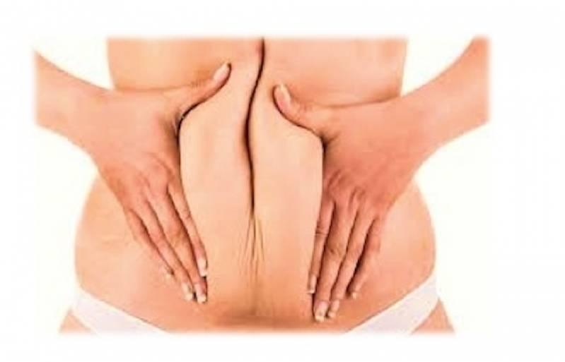 Abdominoplastia Cirurgia Preço Jardim Paulista - Abdominoplastia Barriga Estufada