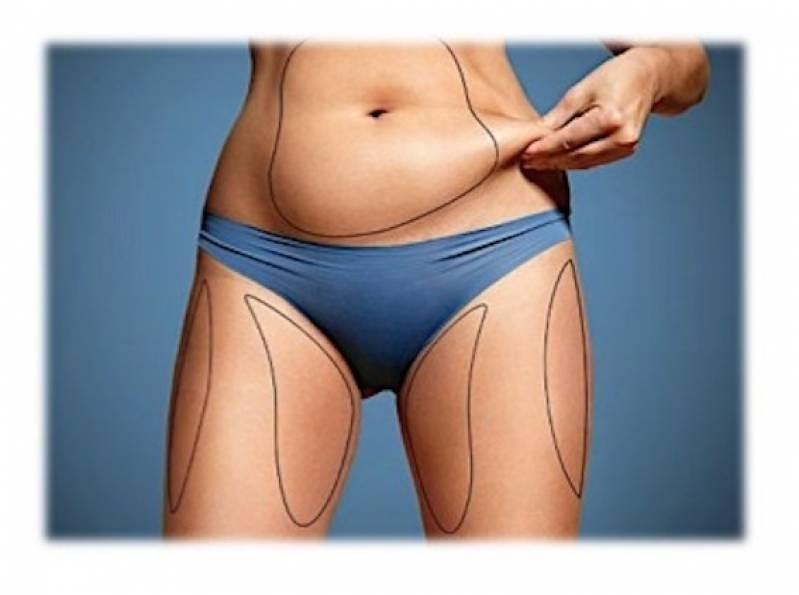 Abdominoplastia Cirurgia Valor Pompéia - Abdominoplastia Barriga Estufada