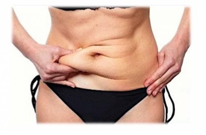 Abdominoplastia com Lipo Preço Jardins - Abdominoplastia Barriga Estufada