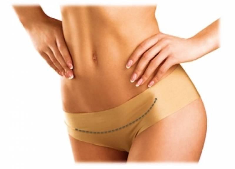 Abdominoplastia com Lipoescultura Preço Saúde - Abdominoplastia Barriga Estufada
