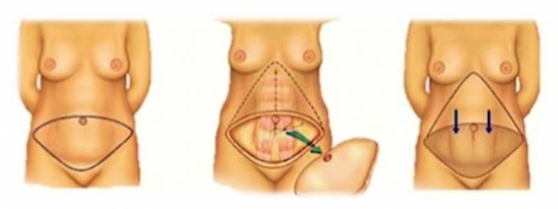 Abdominoplastia com Lipoescultura São Bernardo do Campo - Abdominoplastia Barriga Estufada