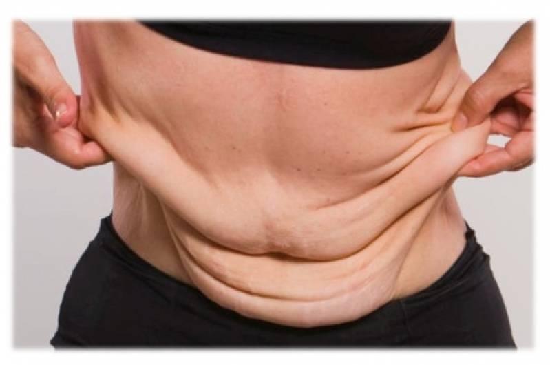 Abdominoplastia em âncora Jardins - Abdominoplastia Barriga Estufada