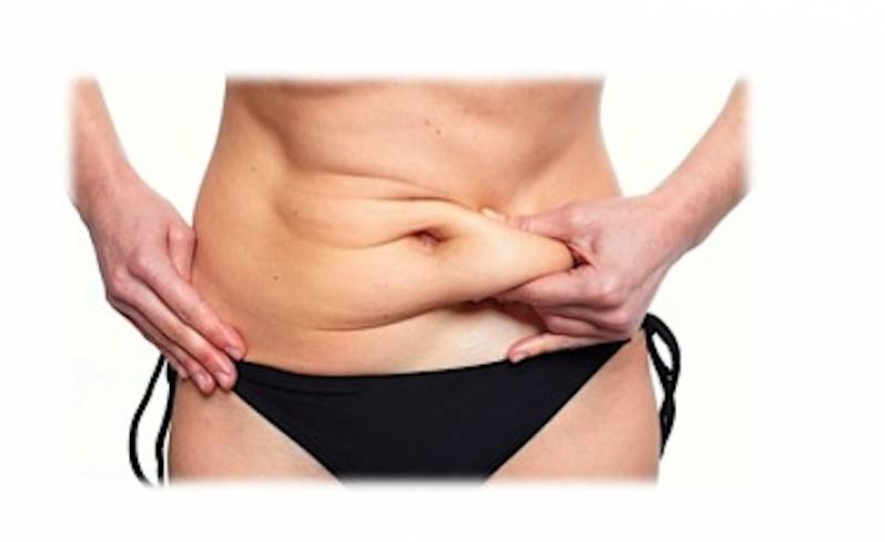Abdominoplastia para Barriga de Avental Valor Diadema - Abdominoplastia Barriga Estufada