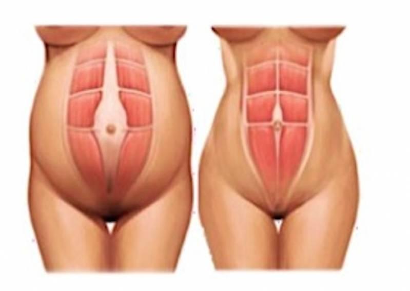Abdominoplastia para Diabéticos Moema - Abdominoplastia Barriga Estufada