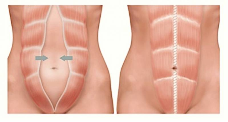Abdominoplastia para Retirar Estrias Jardim Morumbi - Abdominoplastia Barriga Estufada