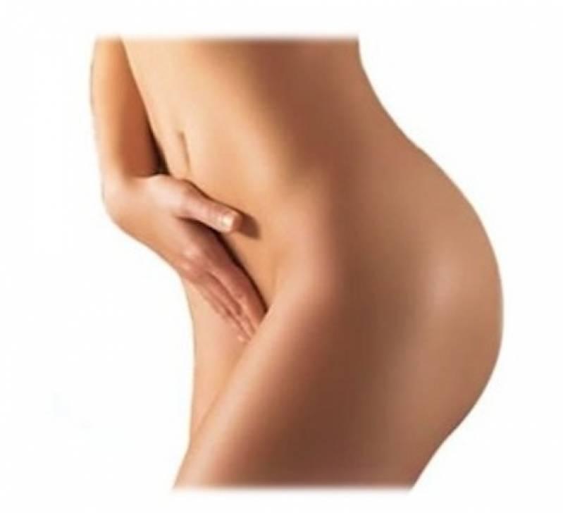 Cirurgia para Lábios Vaginais Preço Pinheiros - Ninfoplastia
