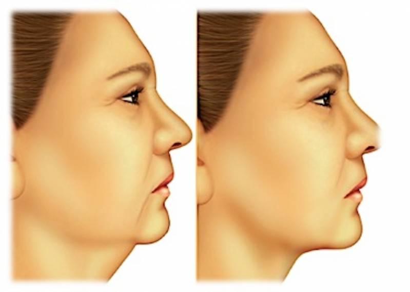Cirurgia Plástica de Papada Preço Brooklin - Cirurgia Plástica de Rosto