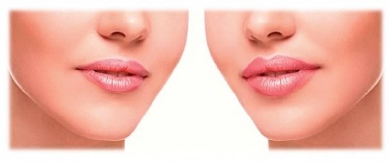 Cirurgia Plástica Labial Pinheiros - Cirurgia Plástica Labial