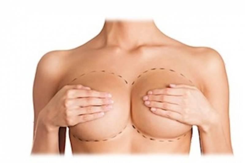 Cirurgia Plástica Mamoplastia Preço São Bernardo do Campo - Cirurgia Plástica no Rosto
