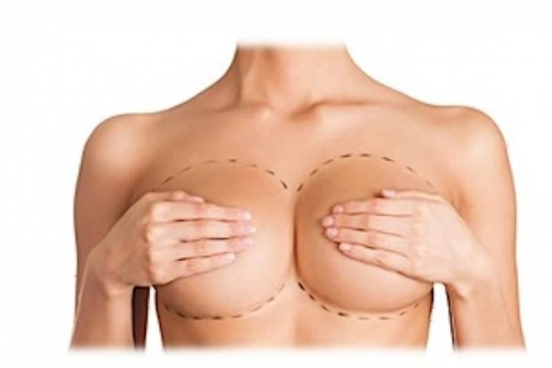 Cirurgia Plástica Mamoplastia Preço Santana - Cirurgia Plástica Labial