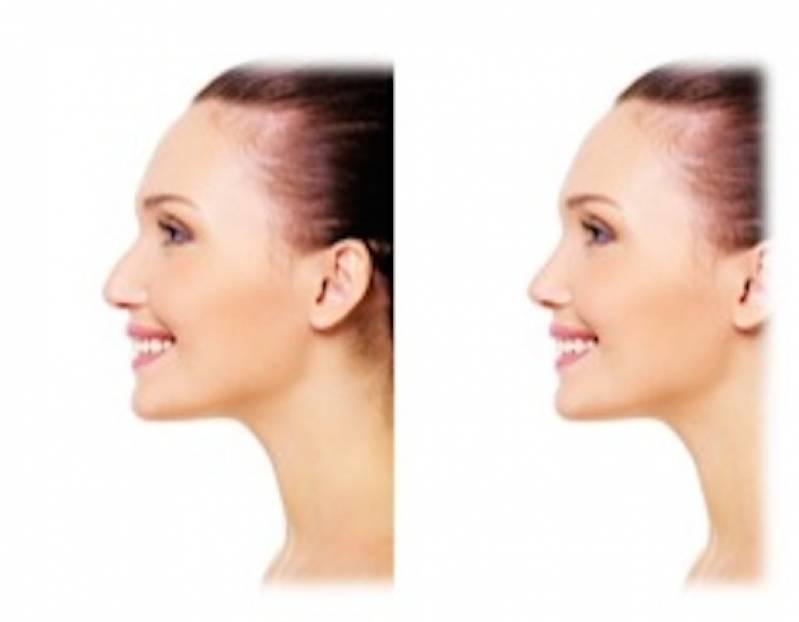 Cirurgia Plástica no Nariz Preço Tatuapé - Cirurgia Plástica no Rosto