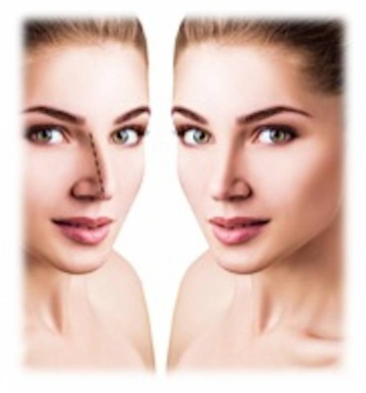 Cirurgia Plástica no Nariz Valor Pompéia - Cirurgia Plástica no Rosto