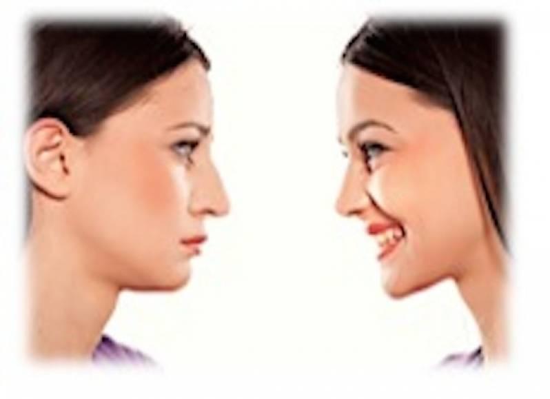 Cirurgia Plástica no Nariz Vila Morumbi - Cirurgia Plástica Abdominal