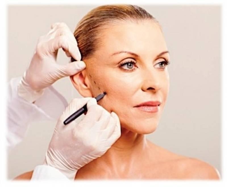Cirurgia Plástica no Rosto Preço Saúde - Cirurgia Plástica de Rosto