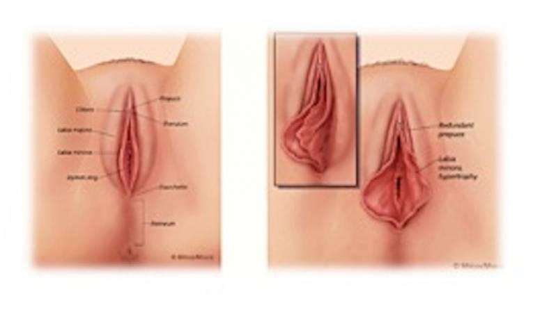 Cirurgia Plástica nos Pequenos Lábios Perdizes - Cirurgia íntima nos Pequenos Lábios