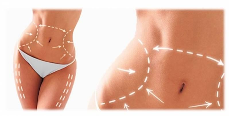Cirurgia Plástica para Afinar a Cintura Preço Diadema - Cirurgia Plástica na Barriga
