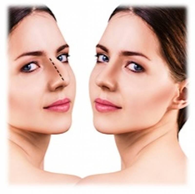 Cirurgia Plástica para Afinar o Nariz Ibirapuera - Cirurgia Plástica Mamoplastia