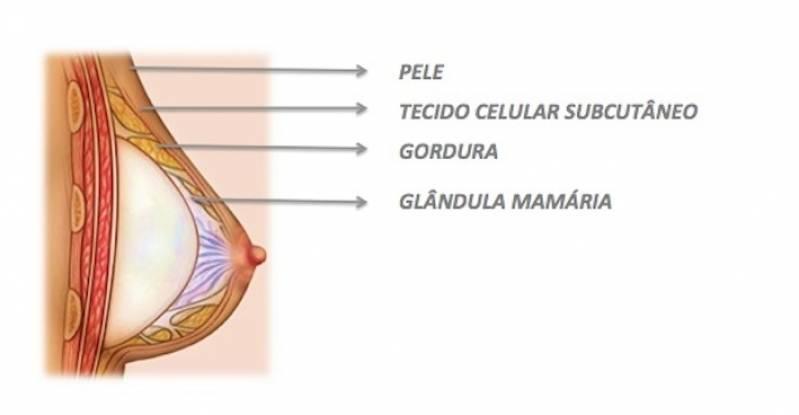 Cirurgia Prótese Mamas Preço Saúde - Prótese de Silicone e Mamoplastia