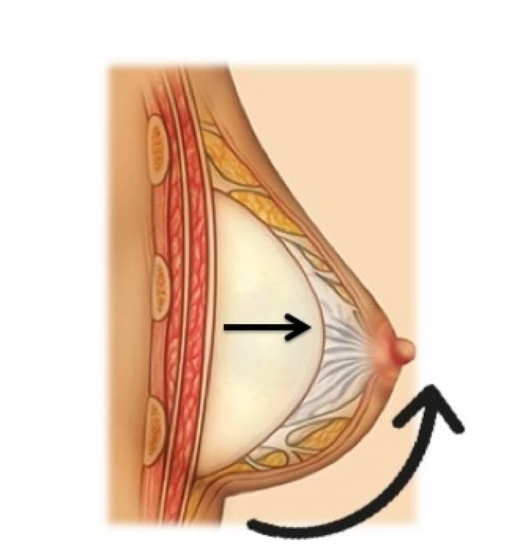 Cirurgia Prótese Mamas Valor Pompéia - Prótese de Silicone Mama