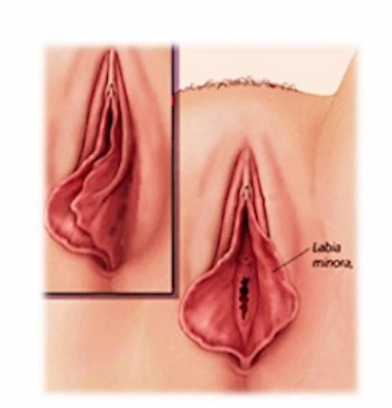 Cirurgia Redução Lábios Vaginais Cidade Jardim - Labioplastia Feminina