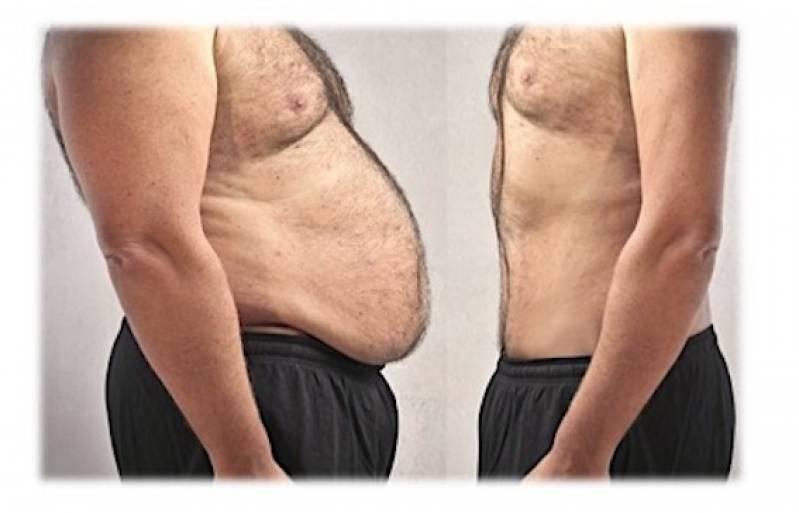 Clínica de Abdominoplastia Masculina Vila Mariana - Abdominoplastia Barriga Estufada