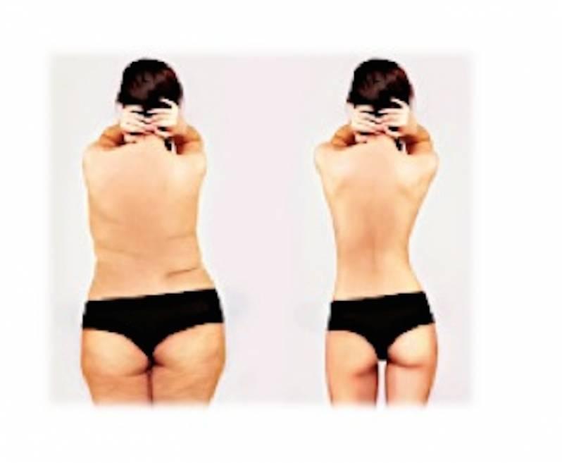 Clínica de Abdominoplastia Pós-emagrecimento Jardins - Abdominoplastia Barriga Estufada