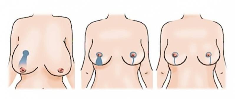 Clínica de Mamoplastia Corretiva Jardins - Mamoplastia Redutora de Pele