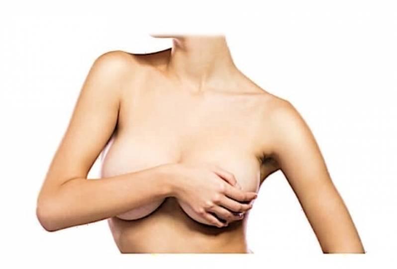 Clínica de Mamoplastia Redutora com Próteses Ipiranga - Mamoplastia com Prótese