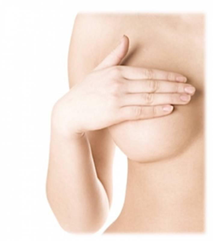 Clínica de Mamoplastia Redutora Vila Mariana - Mamoplastia com Prótese