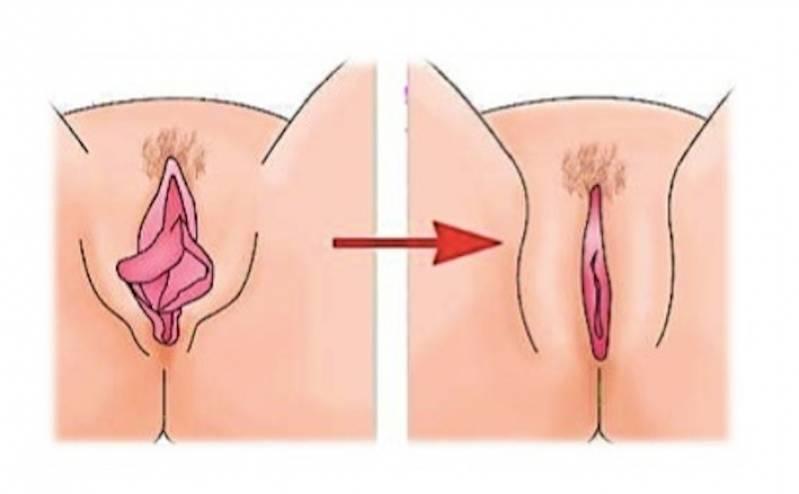 Labioplastia Feminina São Bernardo do Campo - Cirurgia íntima nos Pequenos Lábios