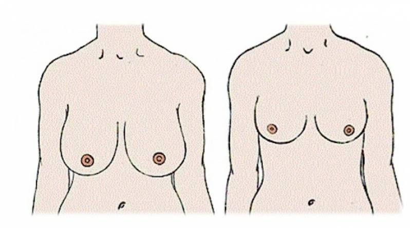 Mamoplastia Corretiva Tatuapé - Mamoplastia Redutora de Pele