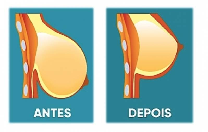 Mamoplastia Redutora Ipiranga - Mamoplastia com Prótese