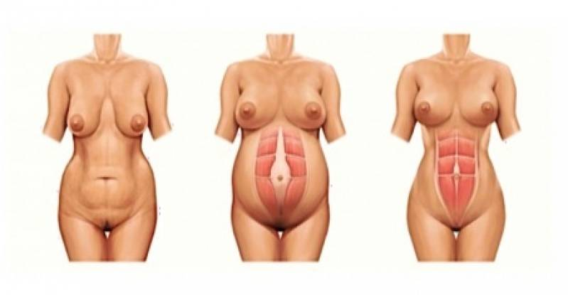 Onde Encontro Abdominoplastia Barriga Estufada Ibirapuera - Abdominoplastia Barriga Estufada