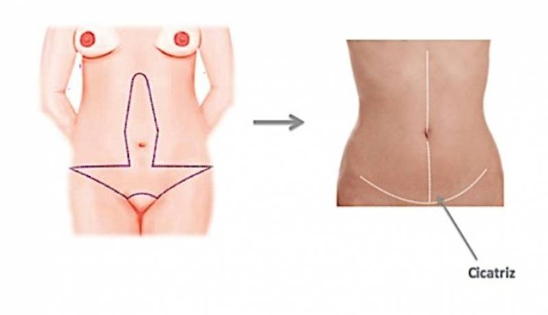 Onde Encontro Abdominoplastia em âncora Ibirapuera - Abdominoplastia Barriga Estufada