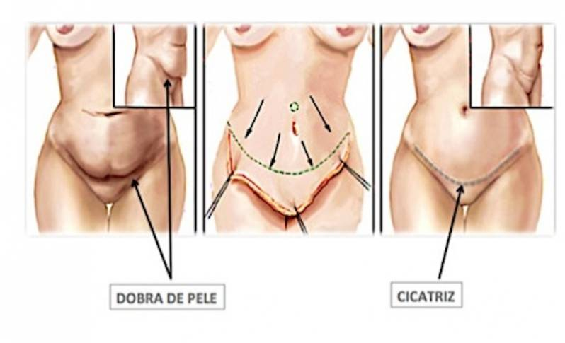 Onde Encontro Abdominoplastia para Barriga de Avental Itaim Bibi - Abdominoplastia Barriga Estufada