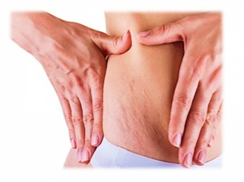 Onde Encontro Abdominoplastia para Retirar Estrias Perdizes - Abdominoplastia Barriga Estufada