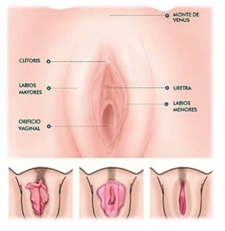 Onde Encontro Cirurgia Intima de Labioplastia Diadema - Cirurgia Plástica nos Pequenos Lábios
