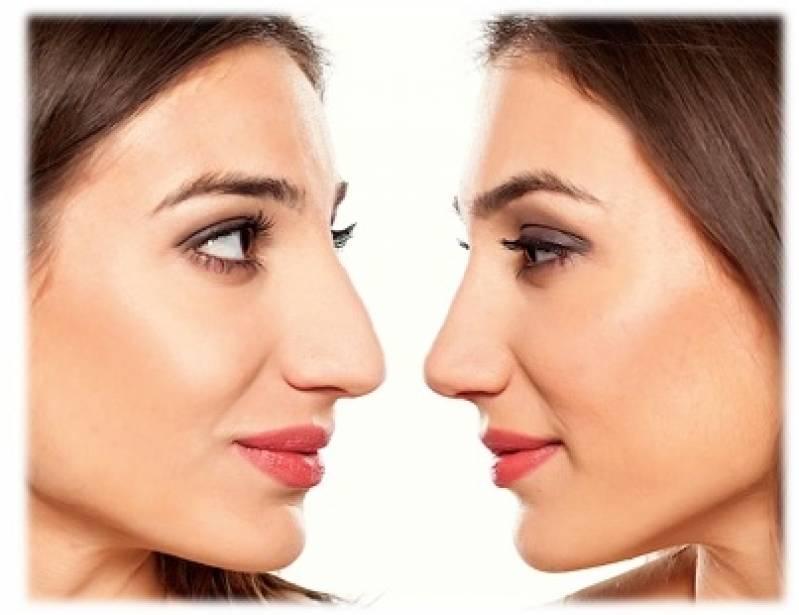 Onde Encontro Cirurgia Plástica no Nariz Ipiranga - Cirurgia Plástica no Abdômen