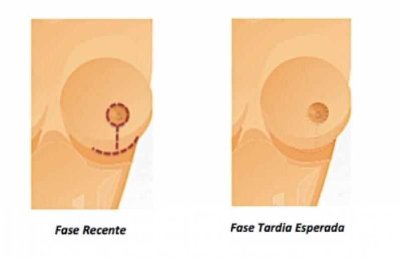Onde Encontro Mamoplastia Bilateral Santo André - Mamoplastia com Prótese