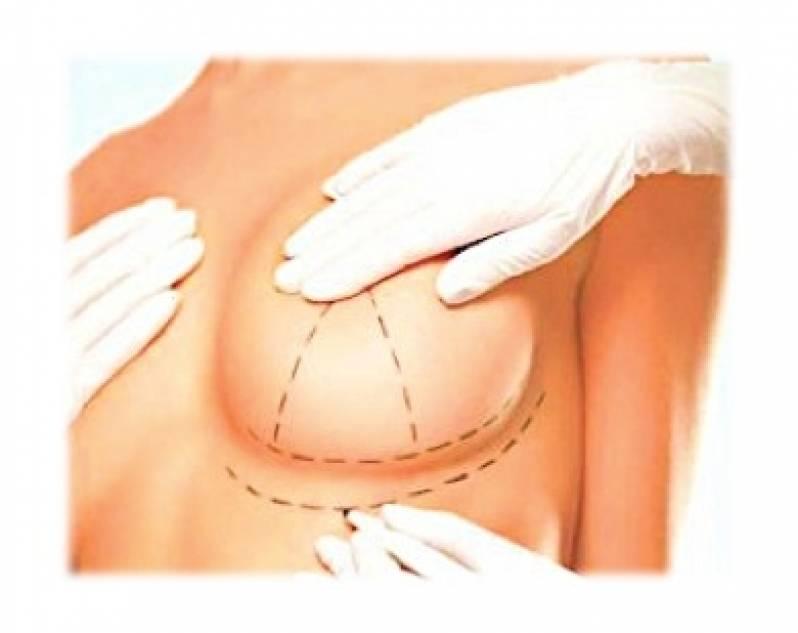 cb7dc622a Onde Encontro Mamoplastia com Prótese Jardins - Mamoplastia Redutora e  Levantamento de Mama