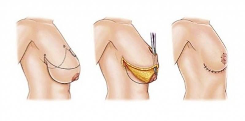 Onde Encontro Mamoplastia Corretiva Morumbi - Mamoplastia com Prótese
