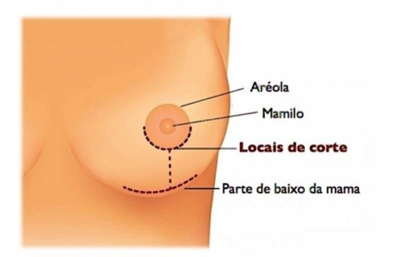 Onde Encontro Mamoplastia Redutora Jardim Paulista - Mamoplastia com Prótese