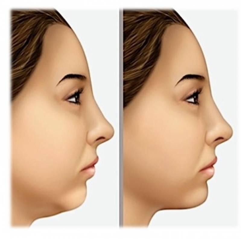 Quanto Custa Cirurgia Plástica de Papada Vila Mariana - Cirurgia Plástica no Rosto