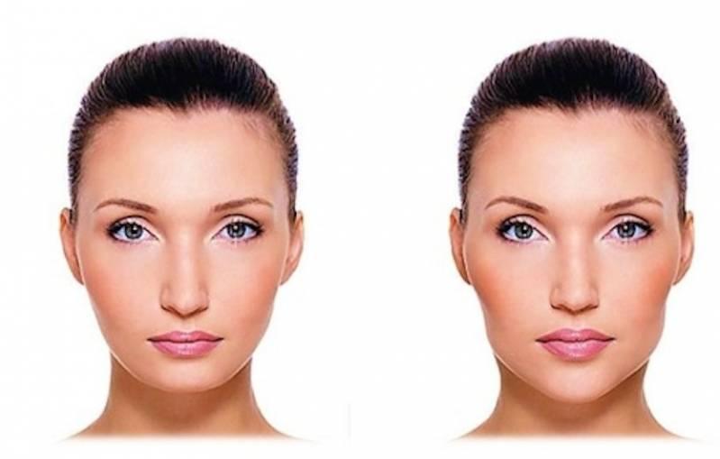 Quanto Custa Cirurgia Plástica Labial Jockey Club - Cirurgia Plástica no Nariz