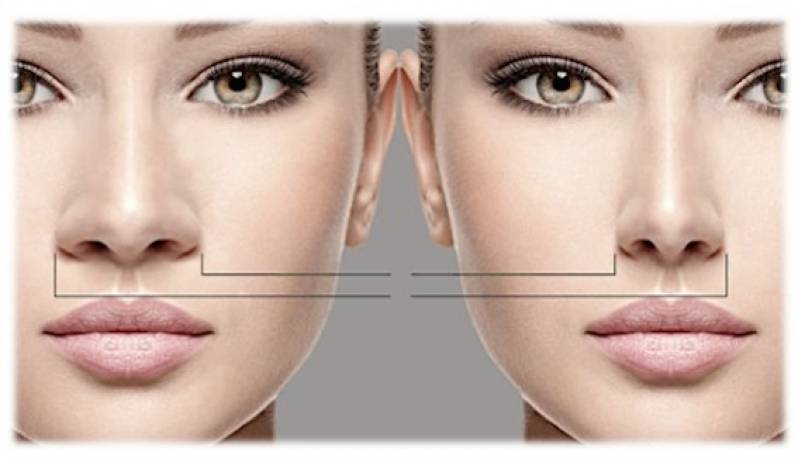 Quanto Custa Cirurgia Plástica para Afinar o Nariz Tatuapé - Cirurgia Plástica na Barriga